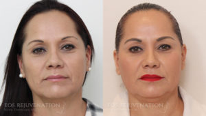 Patient 1a Liquid Face Lift Before and After