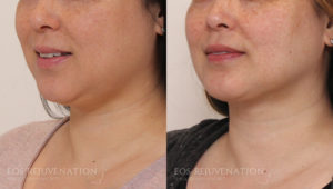 Patient 4b Buccal Fat Removal Before and After