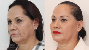 Patient 1b Liquid Face Lift Before and After