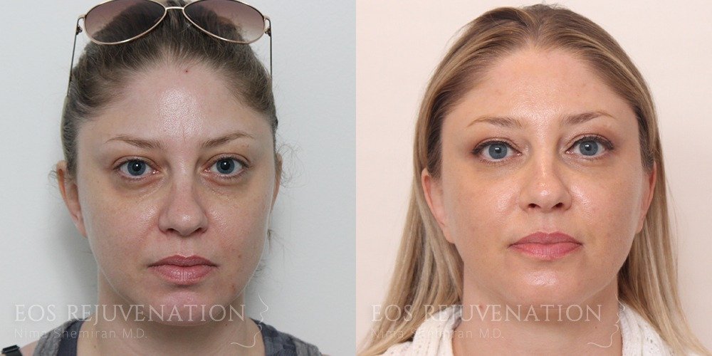 Patient 11a Fillers Before and After