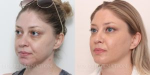 Patient 1b Oblique Botox Before and After