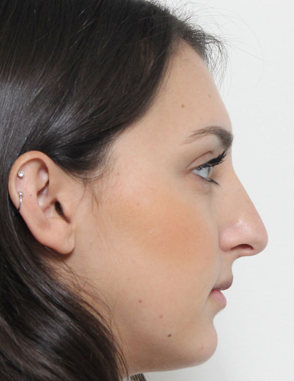 Rhinoplasty Before Patient D
