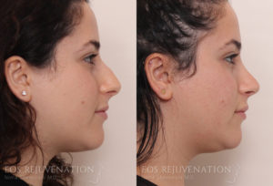Patient 2a Septoplasty Before and After