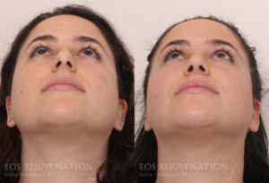 Patient 2c Septoplasty Before and After