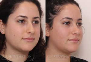 Patient 2b Septoplasty Before and After