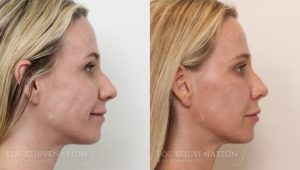 Patient 2c Liquid Face Lift Before and After