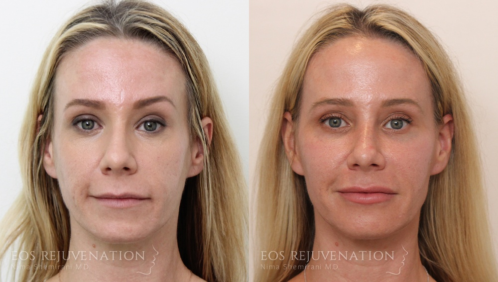 Patient 2a Liquid Face Lift Before and After
