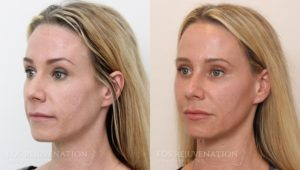 Patient 2b Liquid Face Lift Before and After