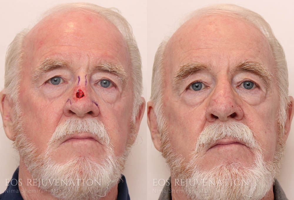 nima_facial-reconstruction_beverlyhills_patient-1a