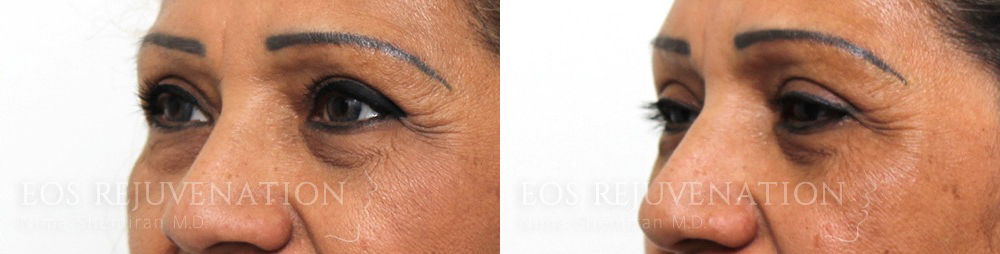 nima_0001_UpperBlepharoplasty_beverlyhills_patient3b_Side