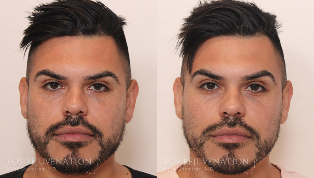 nima-beverly-hills-cheek-augmentation-patient-4-front