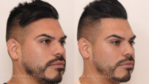 nima-beverly-hills-cheek-augmentation-patient-4-oblique