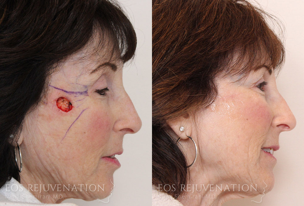 nima-beverly-hills-facial-reconstruction-patient-2