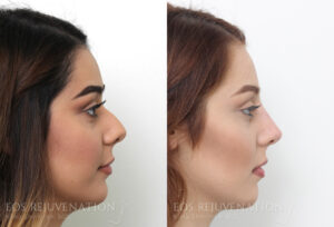 nima-beverly-hills-non-surgical-rhinoplasty-patient-3-4
