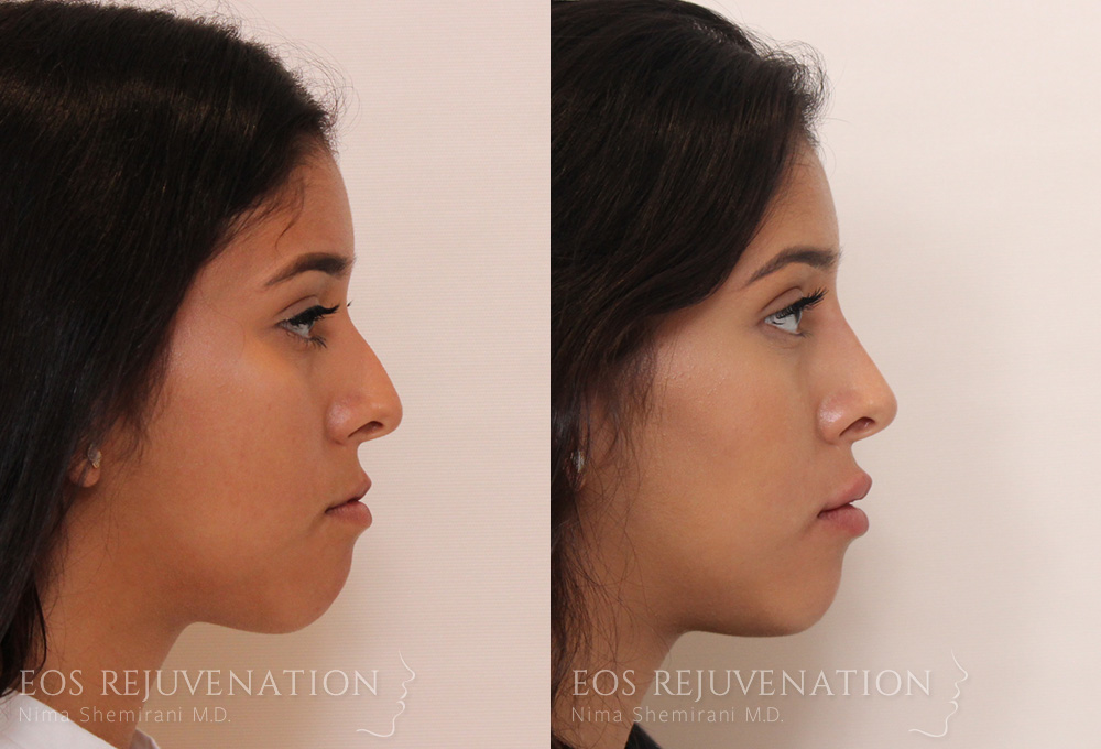 nima-beverly-hills-non-surgical-rhinoplasty-patient-7-1