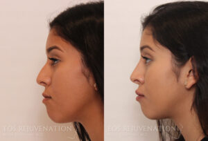 nima-beverly-hills-non-surgical-rhinoplasty-patient-7-2